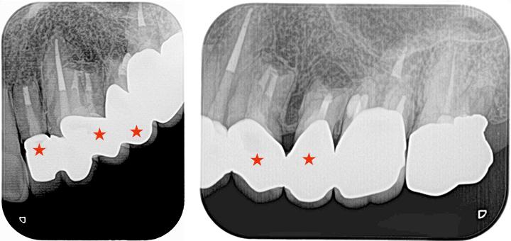 他院で手術したが治らなかった歯の再手術_術後