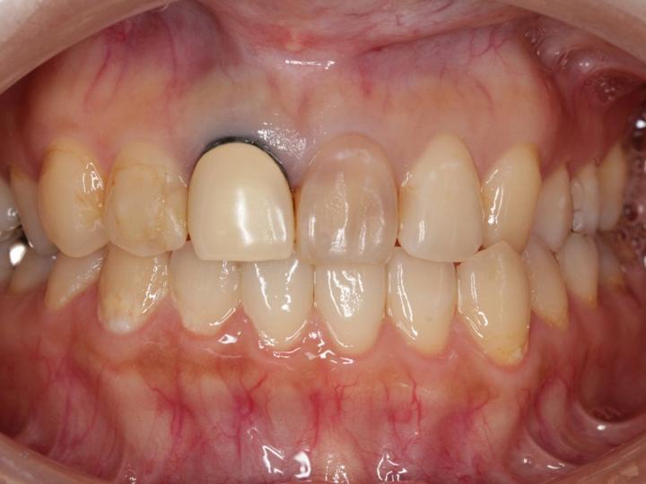 オフィスブリーチ(歯の漂白)_2-1