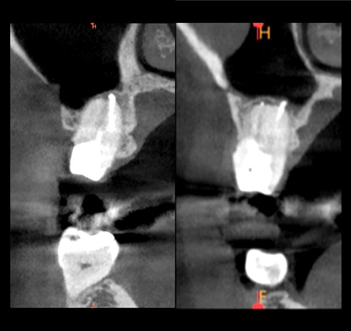 歯が原因で蓄膿になった症例_術後_CT画像