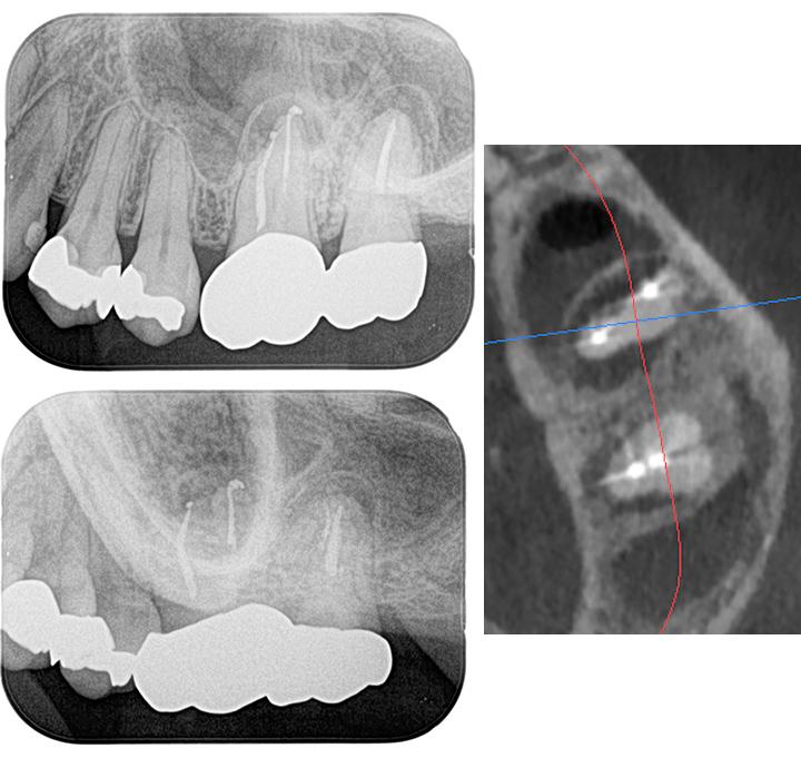 歯が原因で蓄膿になった症例_術前