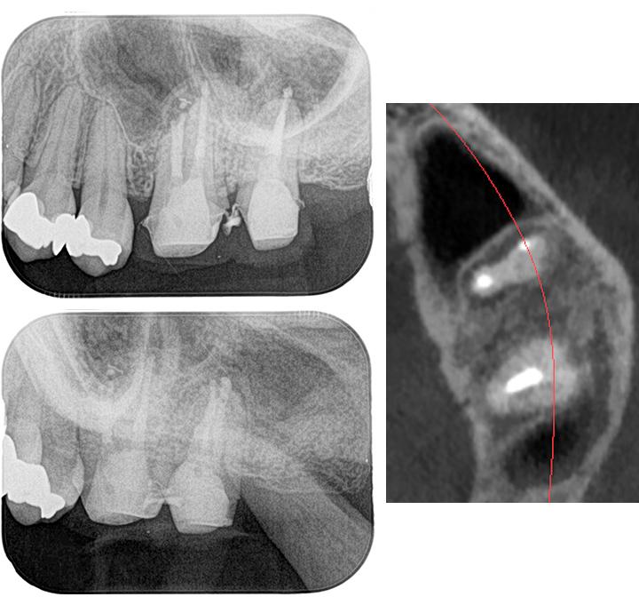 歯が原因で蓄膿になった症例_術後