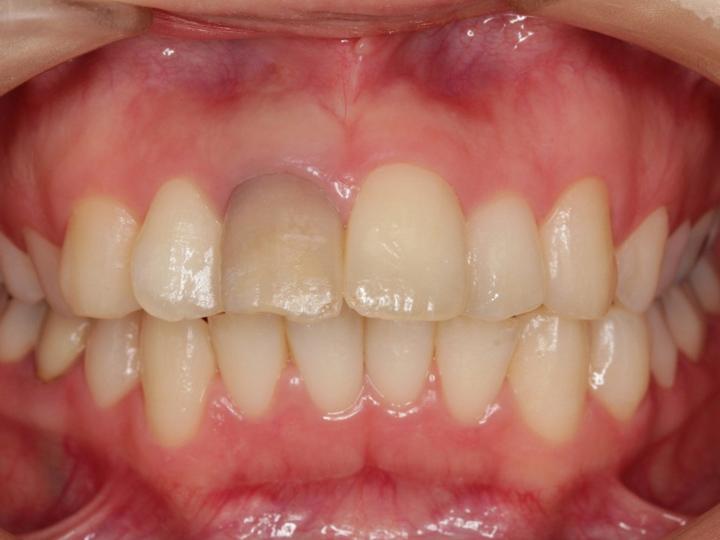 オフィスブリーチ(歯の漂白)_1-1