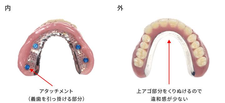 インプラント義歯_2