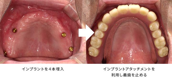 インプラント義歯_1